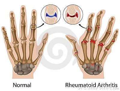 Ujjak ízületeinek deformáló artrózisa