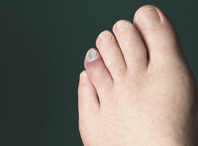 nagy lábujj törés tünetei tudok guggolni térd artritiszben