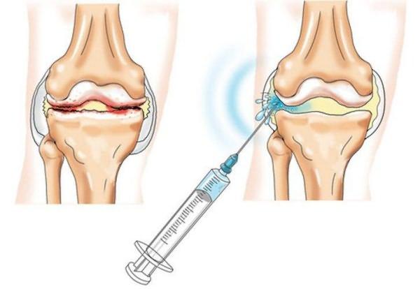 teraflex kezelés artrózis esetén)